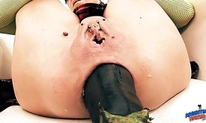Ridiculously well-known prolapse! cervix exposure. eggplant penetratio